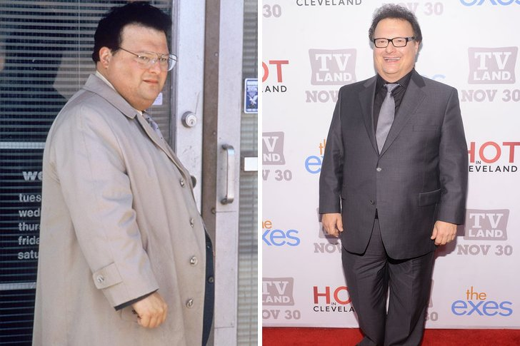 50 Celebrities Who Have Undergone Gastric Sleeve Surgery