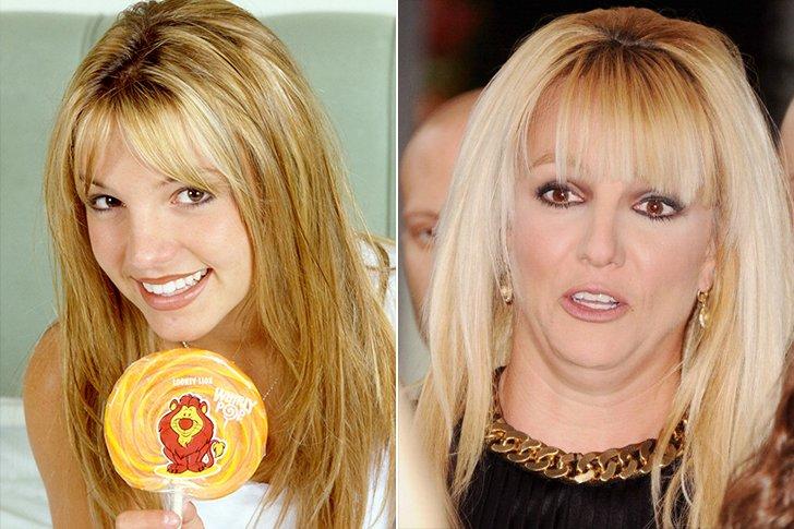 43 celebridades que han horriblemente empeorado su físico ...